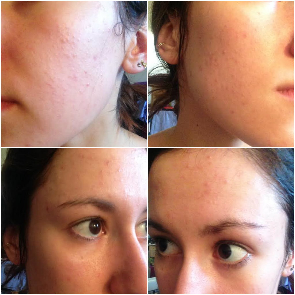 90 days with proactiv+