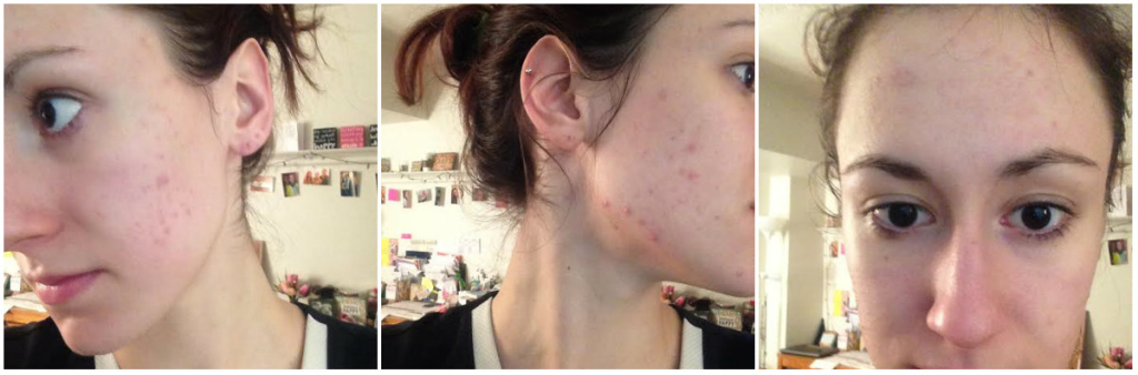 proactiv 90 day trial