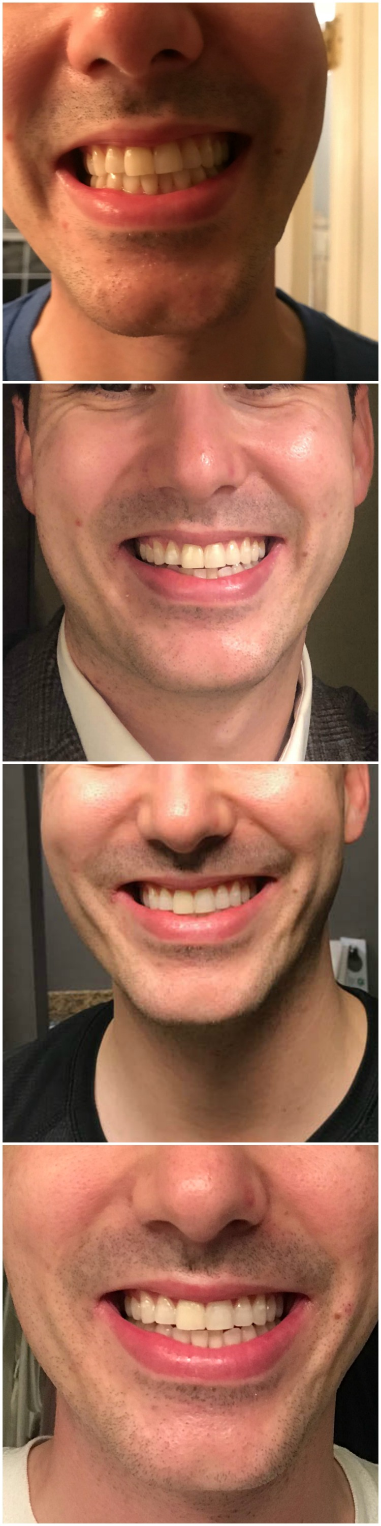 I Wore Crest Whitestrips For 14 Days And Here S What Happened
