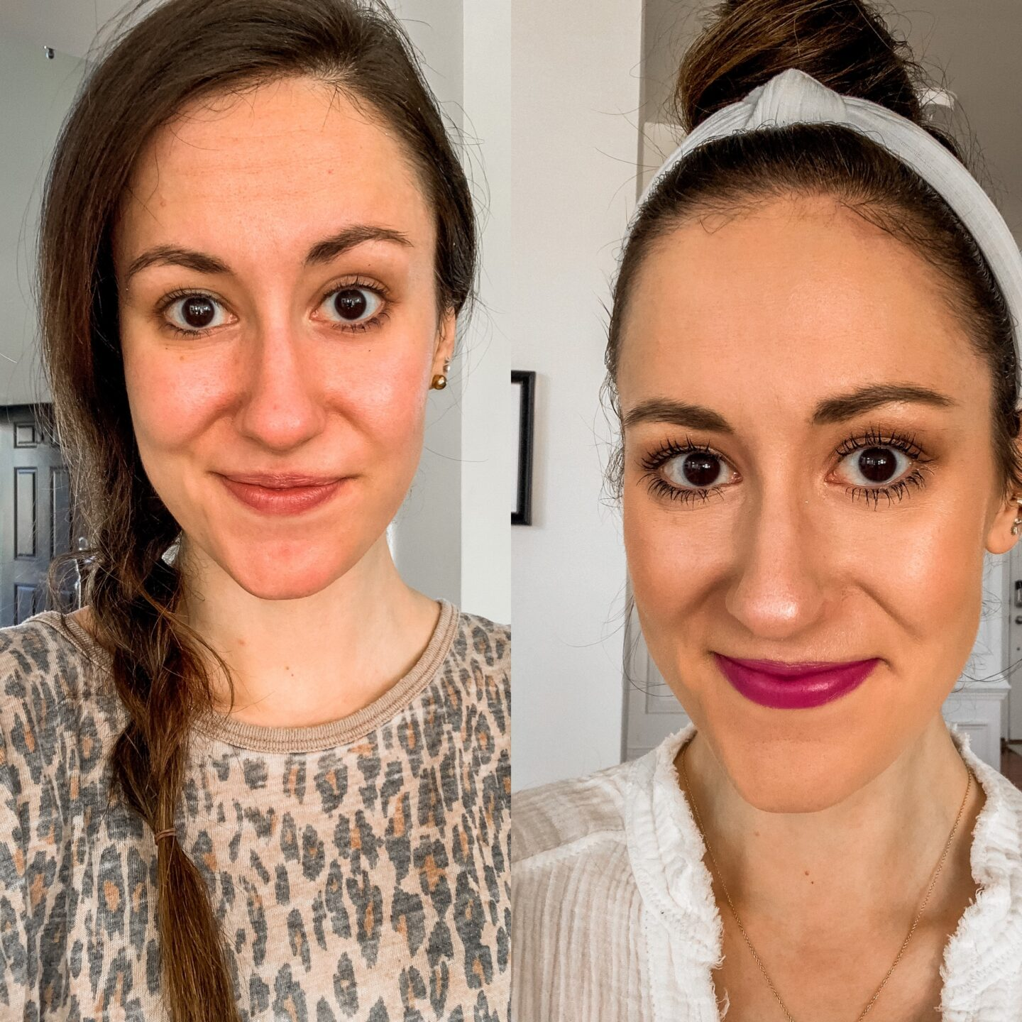 Philly Botox before/after with my mom! on Coming Up Roses